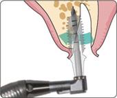 План хирургического вмешательства