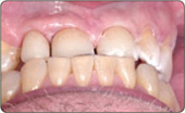 Регулировка контактов при сжатии зубов 1